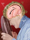 Neuropsychological Information: Traumatic Brain Injury (TBI)